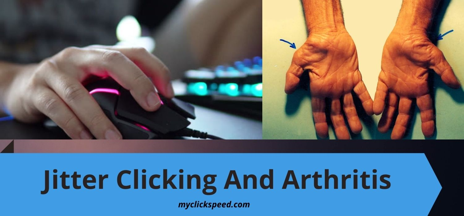 Can Jitter Clicking Cause Arthritis